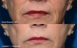 thermismooth face mouth area results